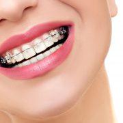 Czy przy noszeniu aparatu ortodontycznego musimy stosować specjalną dietę?
